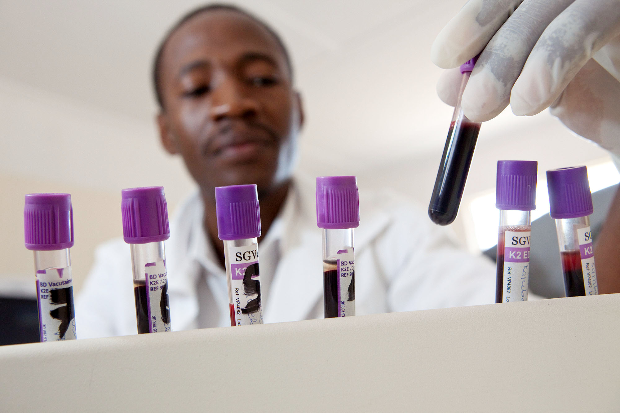 A Laboratory technician test blood samples of HIV patients at a hospital in Luanshya, Zambia.
