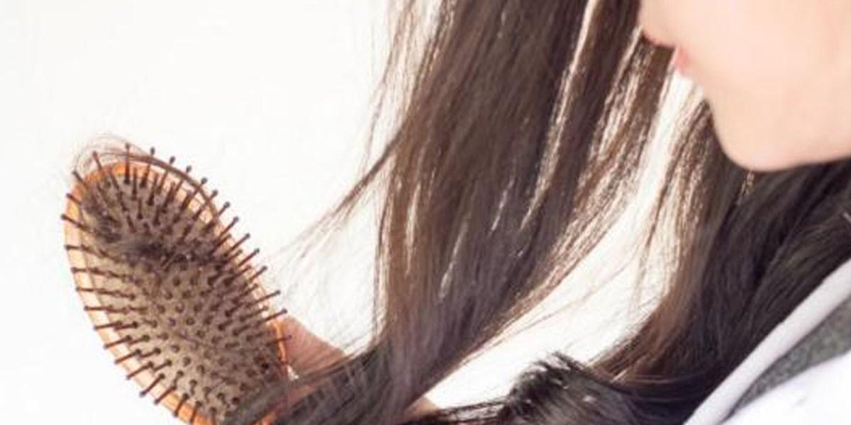 تساقط الشعر الشديد