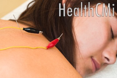 Electroacupuncture was found to successfully stop pain, numbness and weakness due to disc damage.