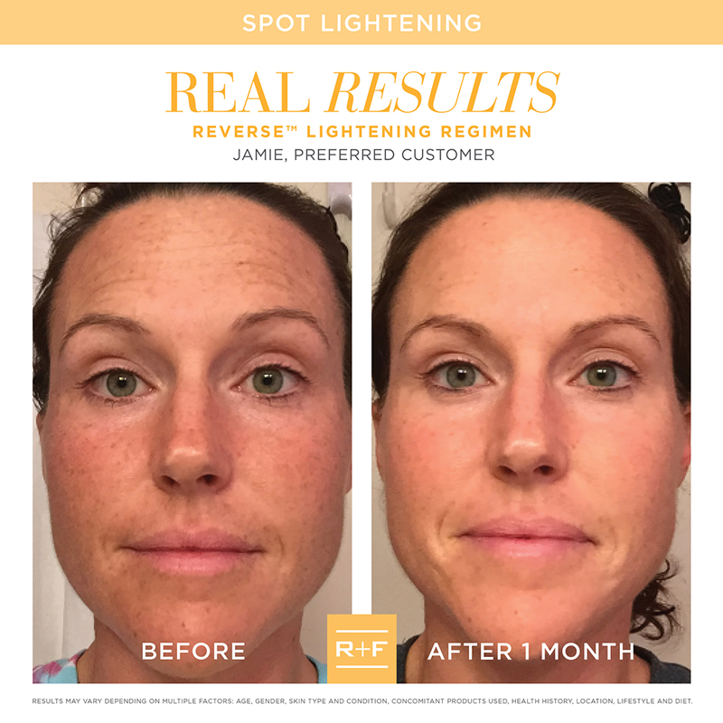 Rodan + Fields Reverse Before + After