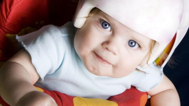 アメリカ, ヘルメット治療, 赤ちゃん, 頭の形, 矯正