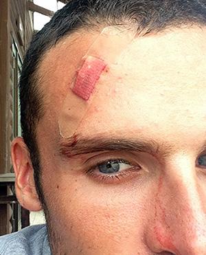 Head Injury on Iki Island