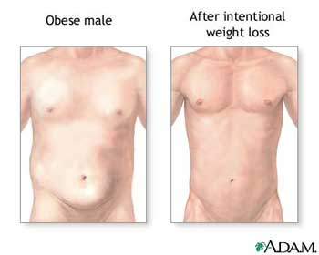 Adam weight loss chitosan