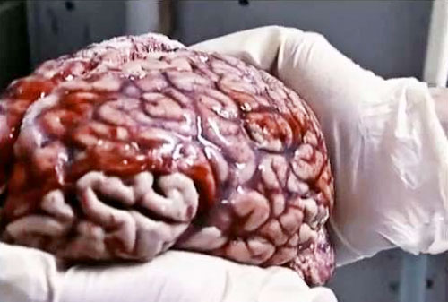 Albert Einstein's Brain Actual Photo