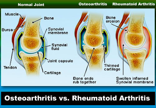 Effective Natural Arthritis Remedies for Pain Relief