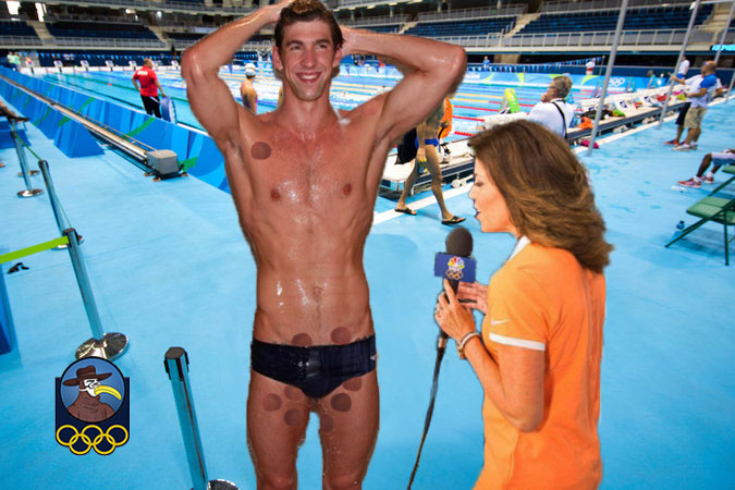 genital_cupping_phelps_l