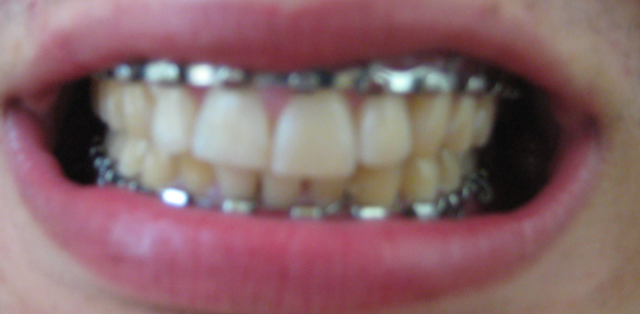 Repaired teeth