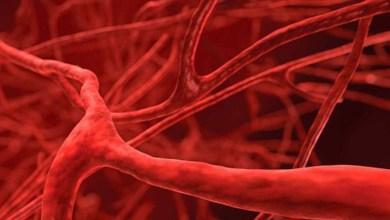 Photo of كيف تحافظ على أوعيتك الدموية من التلف؟