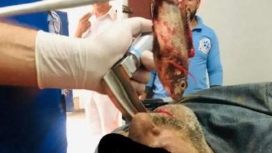 شاهد: لحظة استخراج سمكة من القصبة الهوائية لصياد مصري