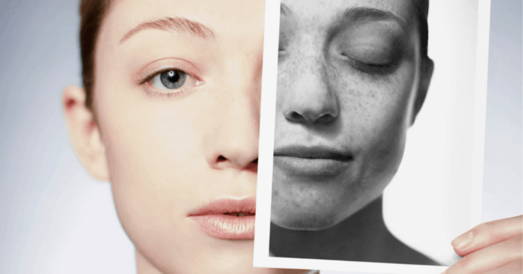 Skincare For Sun Exposure