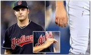 drone collission trevor bauer