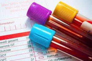 Высокий уровень тромбоцитов при беременности