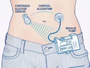 artificial-pancreas-diagram