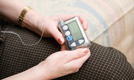 JDRF Experts Weigh in on Better Metrics for Blood-Glucose Control