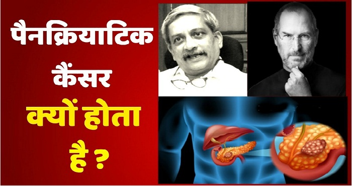 Know About Pancreatic Cancer