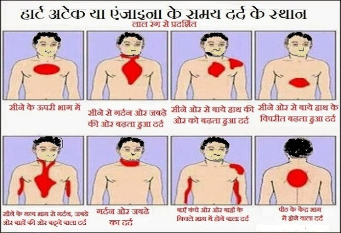Early Signs of Heart Attack