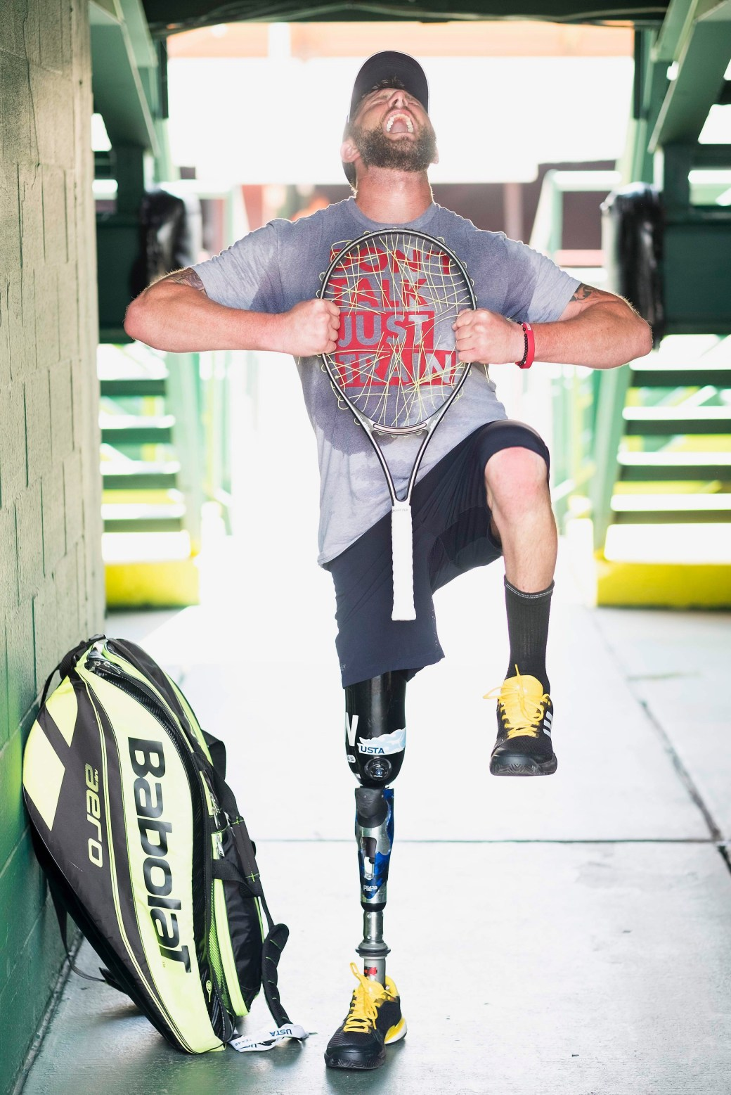 Jeff Bourns on what it is like being approached in public and asked about his prosthetic leg or life as an amputee