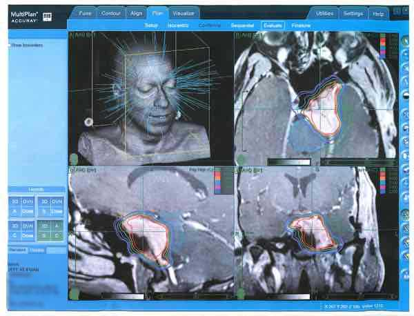 Cyber Knife Radiosurgery plan