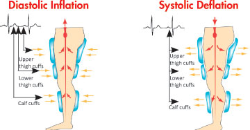 EECP Sequential_Inflation_And_Deflation_Of_Leg_Cuffs_During_Vasomedical_EECP®_Therapy