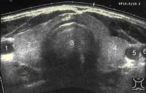 Ultrasound Image of Thyroid Gland