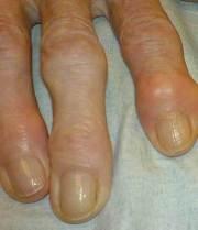 Bioidentical Hormones Prevent Arthritis