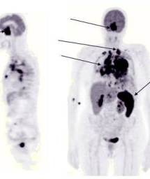 lymphoma_pet_scan_2