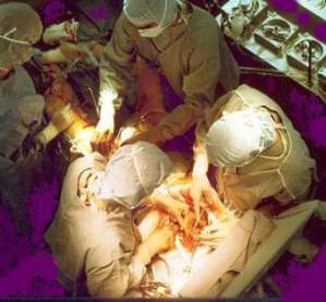 Coronary_artery_bypass_surgery_bioidentical