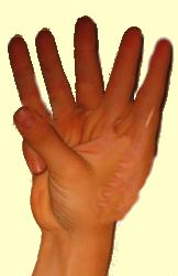 Counting_Hands_AAR