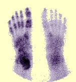 RSD Foot Jeffrey Dach MD