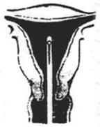 endometrial_bx_3
