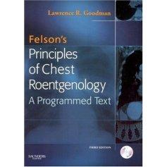 felson_book