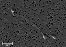 Spermatozoa-human