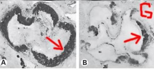 Gonen Ayelet 2005 Allicin AntiAtherosclerosis Pathobiology Fig 1