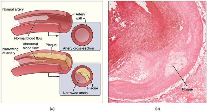Atherosclerosis Plaque Wikimedia