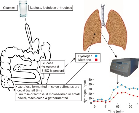 SIBO Interpreting Hydrogen Breath TEst