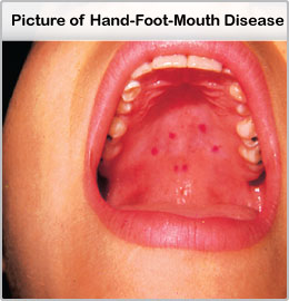 hand-foot-mouth