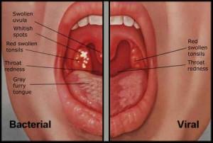 Strep-Throat-without-use-of-antibiotics-300x202