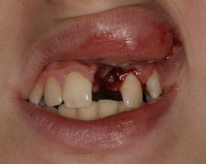 dentalers