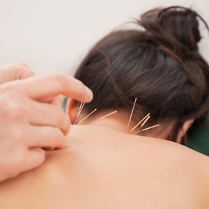 acupunctureback