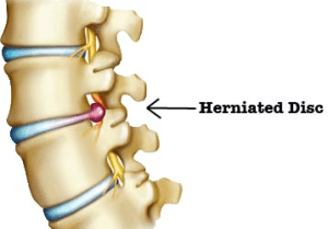 Herniated-disc2-resized-600.jpg