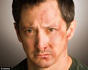 domestic violence abuse man