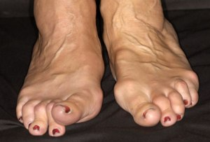 rheumatoid-arthritisfeet