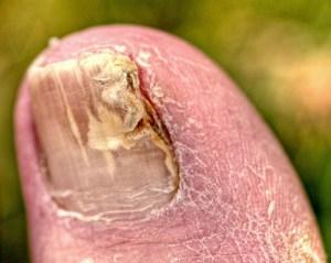 toenail-fungus
