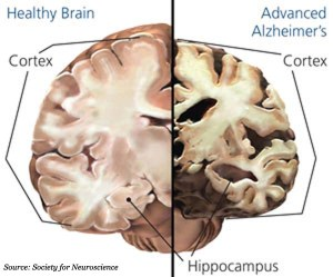 brain health unhealthy brain
