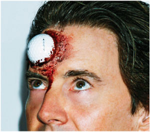 golfball in forehead