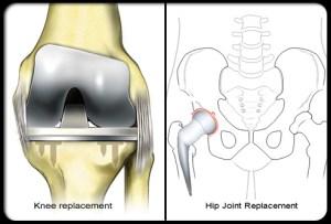arthritis surgery
