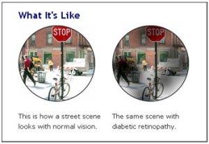diabetic retinopathy vision