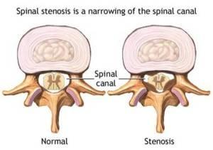 sciatica spinal stenosis