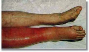 Deep-Vein-Thrombosis-Homeopathic