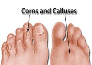 Corns_and_Calluses